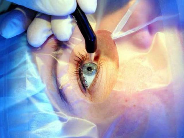 Уральские врачи запатентовали инструмент, сокращающий время операции на катаракту в два раза